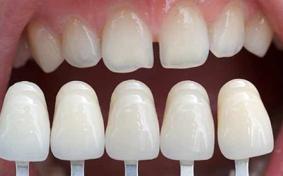 Cosmetic Dentistry Fontana