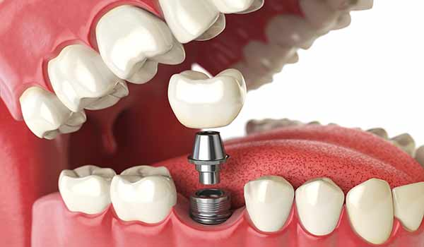 A Dental Implant Can Completely Restore One of Your Lost Teeth