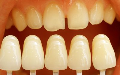 What Can Dental Veneers Do for You