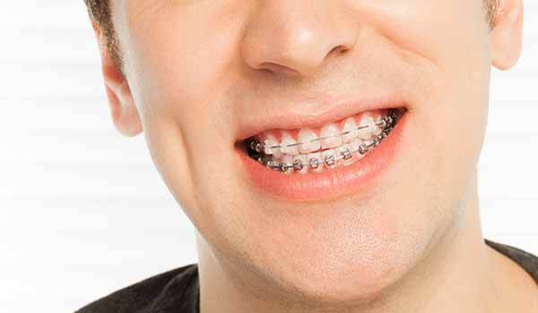 How to Eliminate Bad Breath When You Have Braces