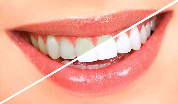 Tips to Find the Best Orthodontist in Fontana, CA