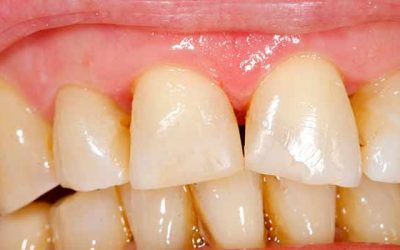 What are Your Treatment Options for Gum Disease